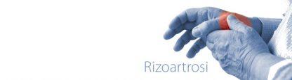 La rizoartrosi è una forma di artrosi che colpisce l'articolazione alla base del primo dito, il pollice. Il dottor Giuseppe Checcucci, Chirurgo chirurgo ortopedico dell'arto superiore, è specializzato nel trattamento della rizoartrosi e riceve a Firenze, Arezzo ed Empoli. I tempi di attesa sono estremamente rapidi.La rizoartrosi - o artrosi della mano - è una degenerazione articolare legata all'invecchiamento dei tessuti e colpisce l'articolazione che si trova alla base del primo dito, il pollice (articolazione trapezio-metacarpale). Questa degenerazione articolare, come tutte le forme di artrosi, tende a far assottigliare la cartilagine che riveste l'osso fino a farla scomparire del tutto. A quel punto, quando i monconi ossei contrapposti presenternno aree prive di cartilagine, farà la sua comparsa il dolore.