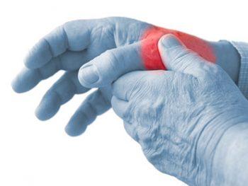 La rizoartrosi - o artrosi della mano - è una degenerazione articolare legata all'invecchiamento dei tessuti e colpisce l'articolazione che si trova alla base del primo dito, il pollice (articolazione trapezio-metacarpale). Questa degenerazione articolare, come tutte le forme di artrosi, tende a far assottigliare la cartilagine che riveste l'osso fino a farla scomparire del tutto. A quel punto, quando i monconi ossei contrapposti presenternno aree prive di cartilagine, farà la sua comparsa il dolore.