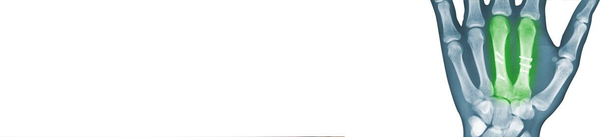 La frattura del metacarpo e la frattura della falange sono tra le fratture più comuni dell'Arto Superiore. I soggetti più a rischio di frattura sono i maschi tra i 10 ed i 40 anni, ovvero tutti coloro i quali si trovano in una maggiore esposizione atletica e lavorativa. Se monitorate con cura e trattate in maniera idonea, sia da un punto di vista conservativo che chiurgico, è possibile ottenere una piena guarigione.