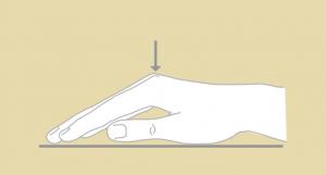 """Il """"test del tavolo""""permette di valutare l'indicazione al trattamento; è un test semplice e facilmente riproducibile anche dal paziente. Quando è positivo, il paziente non riesce a posizionare il palmo della mano e le dita a piatto sul tavolo, a causa della contrattura in flessione di un o più dita. In questo caso è consigliabile recarsi dal medico specialista."""