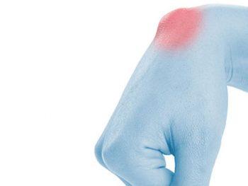 Gli specialisti dell'Arto Superiore Symcro sono esperti nel trattamento della Cisti Artrogena. Scopri gli ambulatori in Toscana ed Emilia.